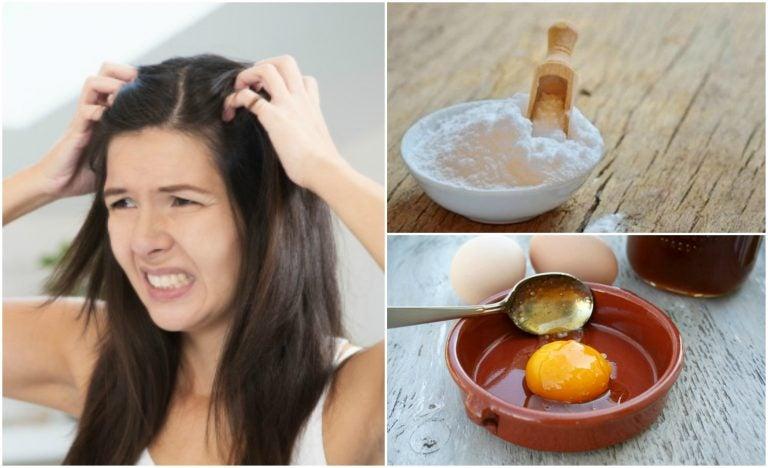 Combate la caspa de forma natural con 5 remedios caseros