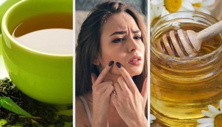 9 remedios naturales efectivos contra el acné juvenil