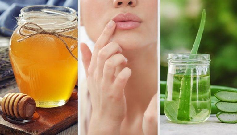 Remedios naturales para eliminar las grietas alrededor de los labios