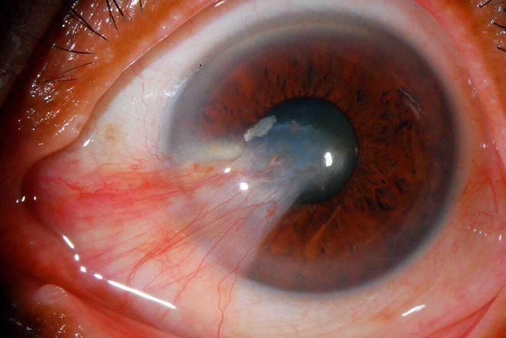 Pterigión; se diferencia de la pinguécula porque se desarrolla desde uno de los extremos de la conjuntiva hacia la córnea