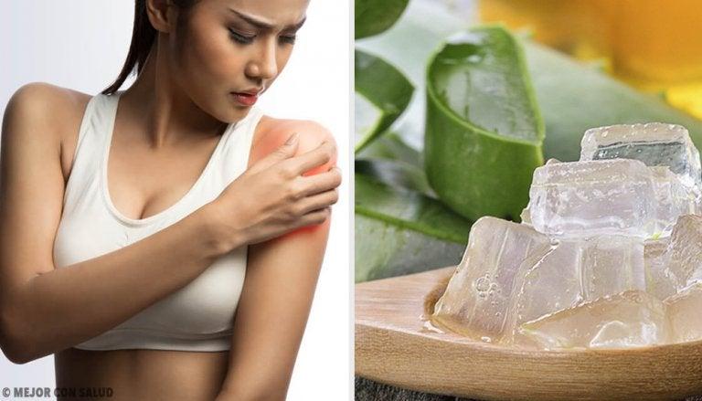 Remedios para la piel enrojecida por quemaduras solares