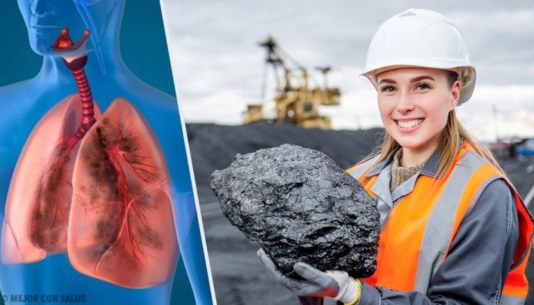 Antracosis: la enfermedad de los mineros del carbón