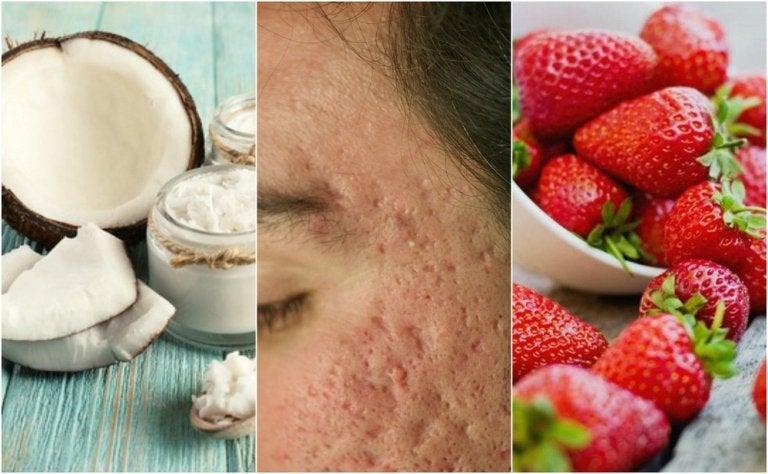 Tratamientos caseros para atenuar las cicatrices del acné