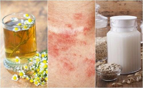 5 remedios caseros para tratar la dermatitis de contacto