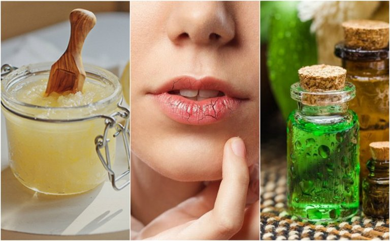 Cómo prevenir y tratar los labios agrietados