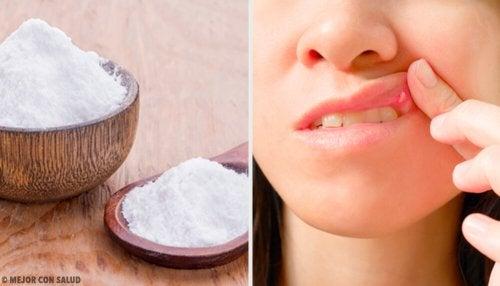 8 remedios para aliviar las llagas en la boca