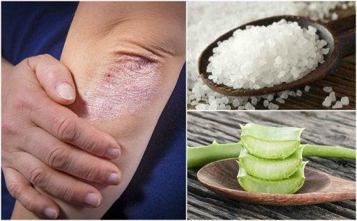 5 soluciones naturales para los hongos en la piel
