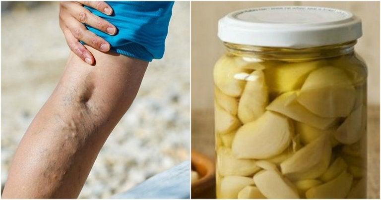 Remedio casero de ajo y naranja para tratar las varices