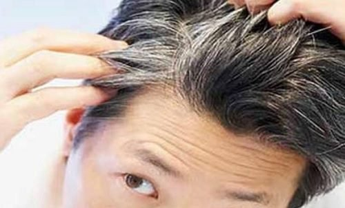 ¿Por qué salen las canas?