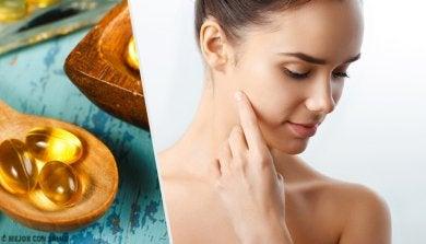 5 formas de usar una cápsula de vitamina E en tu piel