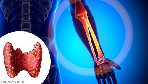 La hormona paratiroidea controla los niveles de calcio y la formación de hueso