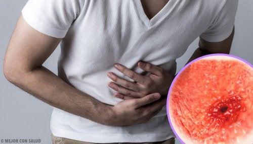 La peritonitis: causas, síntomas y tratamiento