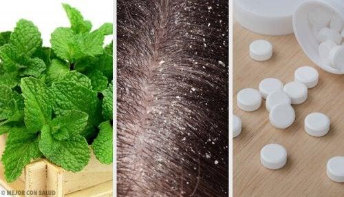 ¿Funcionan los remedios caseros para tratar la caspa?