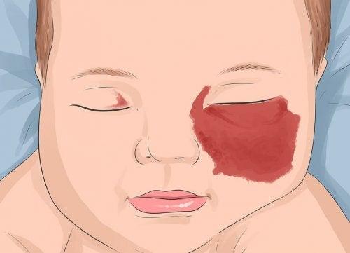 Angiomas en bebés: todo lo que debes saber