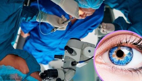 Cirugía para la miopía: todo lo que debes saber