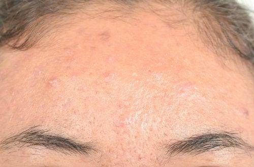 Remedios naturales efectivos para la dermatitis seborreica