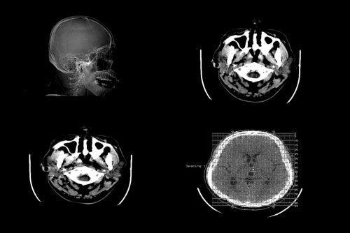 Edema cerebral: causas, síntomas y diagnóstico