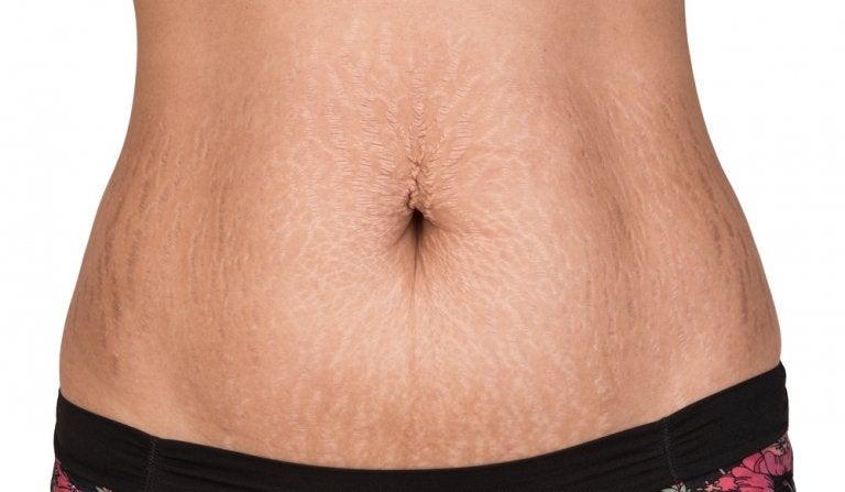 Tratamientos naturales para combatir las estrías en la piel