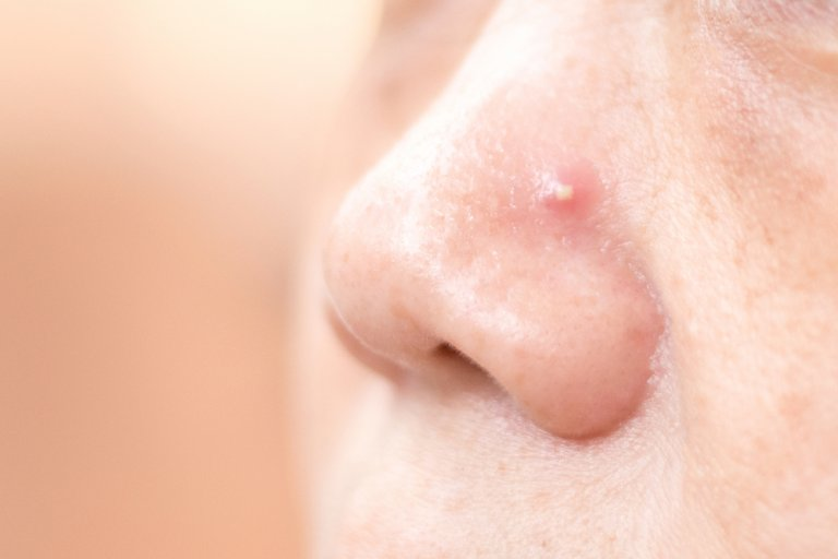 Cómo tratar los granos en la nariz con 4 remedios caseros