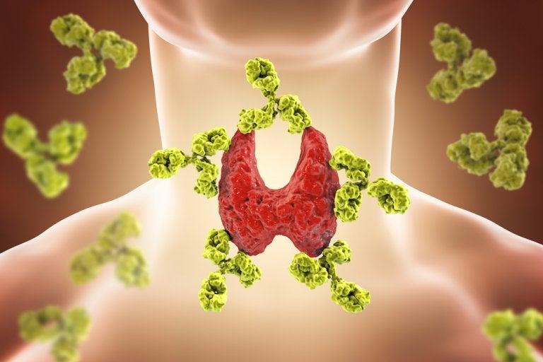 Hipotiroidismo: causas, síntomas, diagnóstico y tratamiento