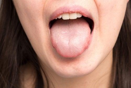Hongos en la boca: síntomas, causas y tratamiento