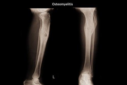 ¿Qué es la osteomielitis?
