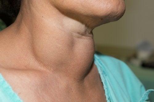 Lipoma en el cuello, ¿cómo reconocerlo?