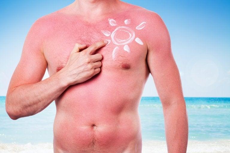 Sol y cáncer de piel, ¿qué relación hay?