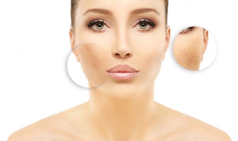 Cómo reducir la hiperpigmentación con 5 remedios caseros