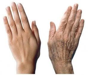7 recomendaciones para cuidar las manos del envejecimiento
