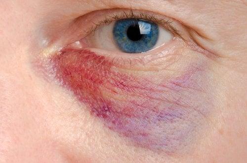 Cómo aliviar un ojo morado: 6 tratamientos naturales