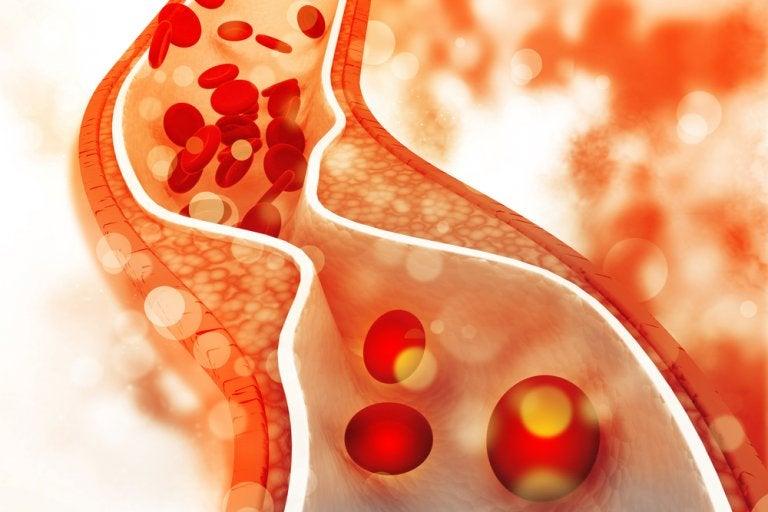 4 recomendaciones dietarias para regular el colesterol