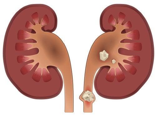 4 jugos para eliminar las piedras en los riñones