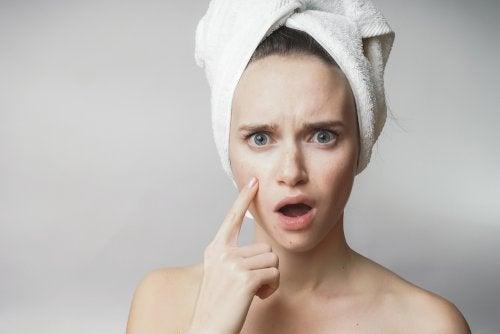 Dieta para el acné: ¿qué alimentos debo evitar?