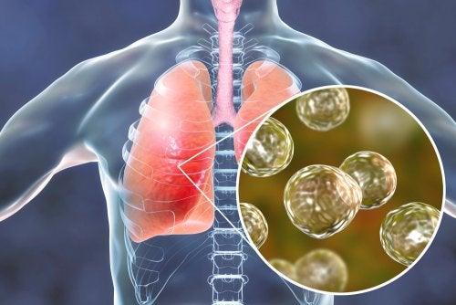 5 remedios naturales efectivos contra los síntomas de la blastomicosis