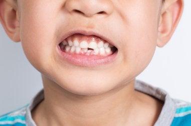 ¿Qué hacer si mi hijo se rompe un diente?