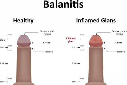 Todo acerca del tratamiento de la balanitis