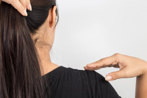 ¿Tienes caspa en tu cabello? Dile adiós con un tratamiento de huevo