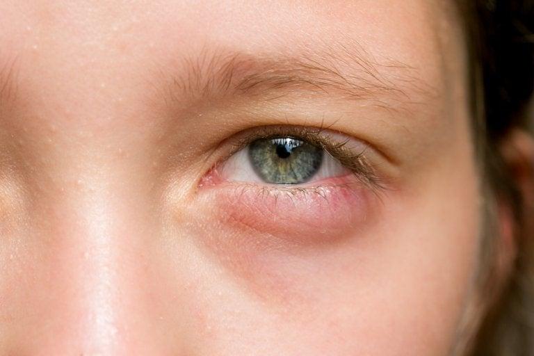 ¿Tus ojos amanecieron hinchados? 5 remedios rápidos para aliviarlos