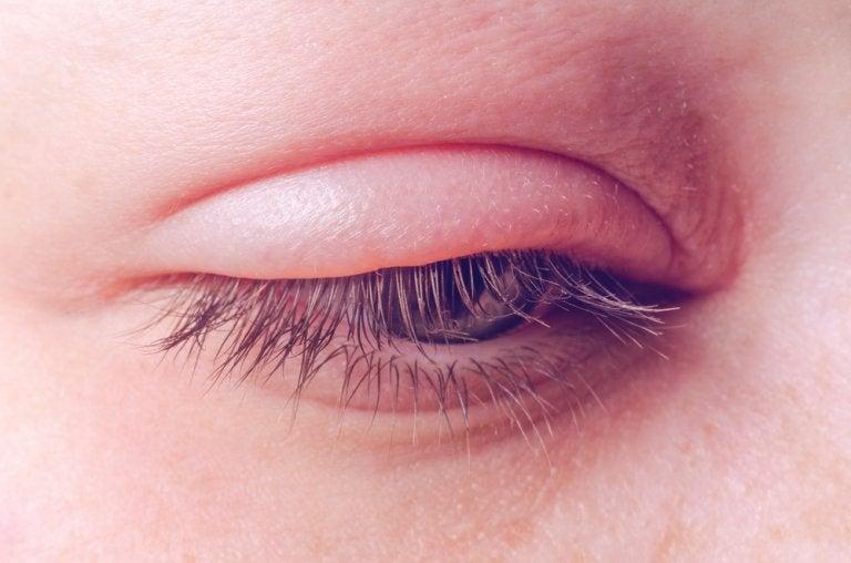 Blefaritis: causas, síntomas y tratamiento