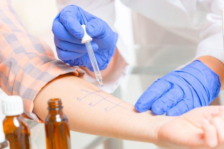 Prueba de sensibilidad: cuándo se utiliza y con cuáles medicamentos