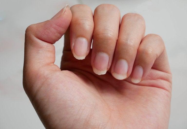 9 remedios para las uñas quebradizas que debes conocer