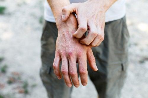 6 preparaciones caseras para tratar la dermatitis de contacto