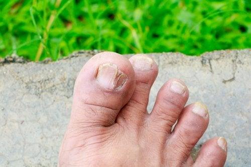 2 tipos de hongos en la piel y cómo identificarlos