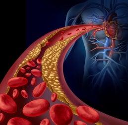 Modelo de dieta para bajar los triglicéridos