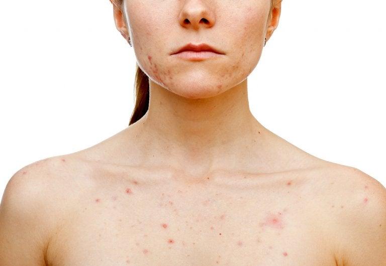 ¿Qué desencadena el acné en las mujeres?