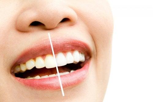Productos para blanquear tus dientes de forma natural