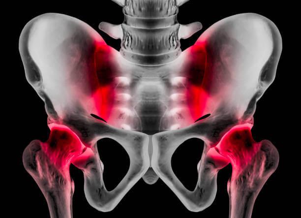 Pubalgia: causas, síntomas y tratamiento