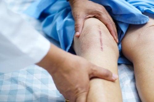 Recuperación tras un trasplante de rodilla