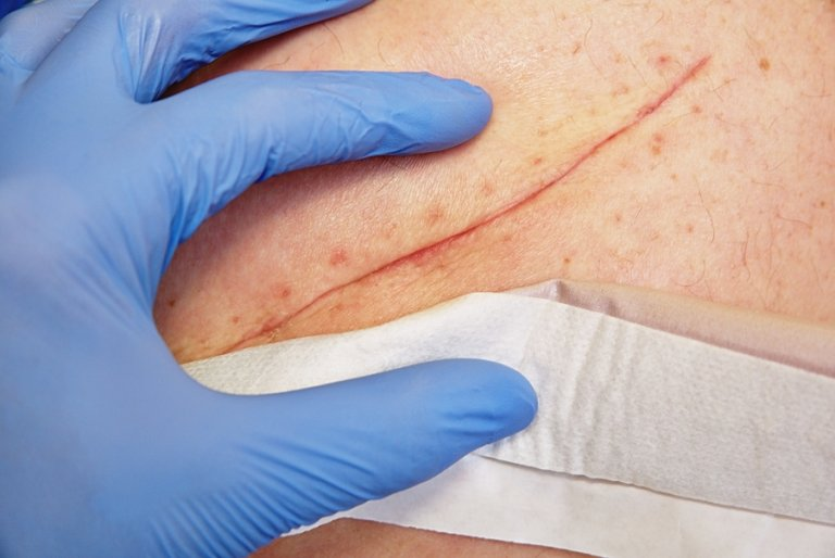 Técnicas basicas de cierre de las heridas
